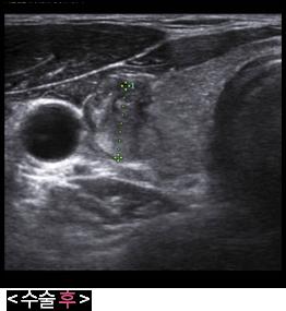갑상선고주파 수술 후 초음파 사진